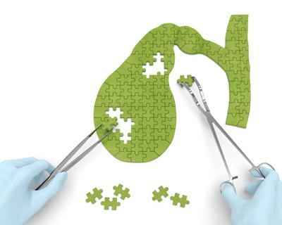 Colelitíase: sintomas e fatores de risco